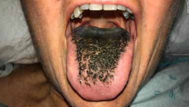 Черен космат език - какво е това? (СНИМКИ)