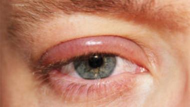 Как да се отървем от ечемик на окото