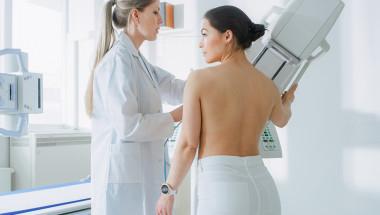 Д-р Вълкан Иванов: Мамографията е безопасна, когато се прави по-рядко от веднъж годишно