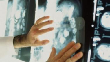Най-ранните симптоми на онкологичните заболявания
