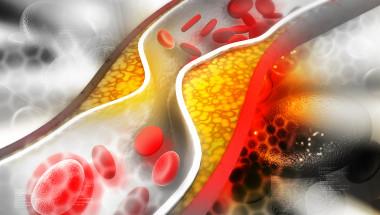 Холестеролът не е причина за атеросклерозата