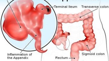 Учени установиха: Премахването на апендикса предпазва от страшна болест