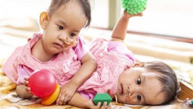 Уникална операция дава шанс за нормален живот на сиамските близначки Нима и Дауа (СНИМКИ)