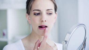 Какво показва появата на херпес на устните?