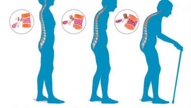 Учени откриха лесен начин за лекуване на остеопорозата