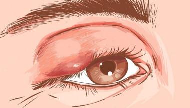 Как да се отървем от ечемика на окото?