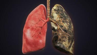 Британски медици започнаха да лекуват рак на белия дроб с уникална операция