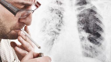 Д-р Венцислава Пенчева, дм.: При две трети от болните карциномът на бял дроб се открива късно