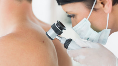 Антиоксидантите ускоряват развитието  на меланом на кожата