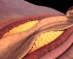 Как да намалим холестерола без хапчета