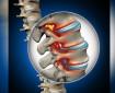 Д-р Христо Христов, д.м.: Дисковата  херния се оперира, ако болката не минава с лекарства