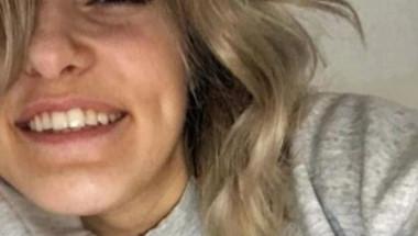 Блондинка има най-странната алергия на света, може да умре всеки един ден (СНИМКИ)