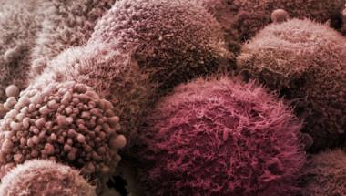 Тези 5 храни намаляват риска от развитие на рак