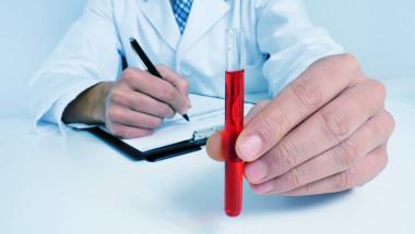 Учените разработиха кръвен тест, който ще предскаже дали ще умрете в следващите 10 години