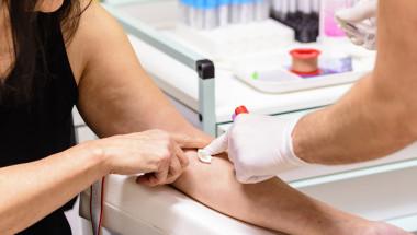 При диабет гладуването преди кръвен тест може да е вредно