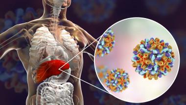 """Проф. д-р Никола Григоров, д.м.н.:  Паниката по отношение на """"болестта на мръсните ръце"""", както наричат този вид хепатит, е излишна"""