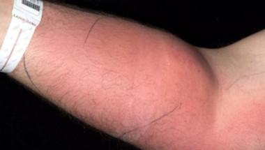 Мъж шокира с лечение: Използвал собствената си семенна течност, за да...