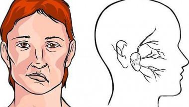 Лекари назоваха основните симптоми на настъпващ инсулт