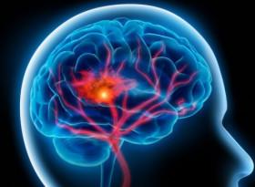 Експерти разкриха: Може да получите инсулт на всяка възраст, но има как да намалите риска