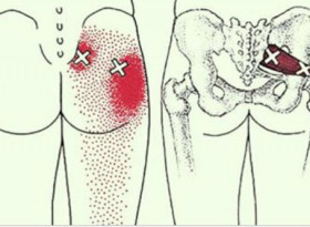 2 трика, които отключват седалищния нерв и облекчават болката след няколко минути! (СНИМКИ)