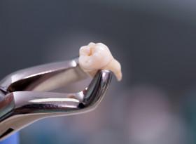 Д-р Богомил Стоев: Сухият алвеолит често възниква след вадене на зъб