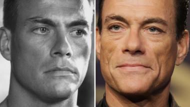 Известни мъже с пластични операции: СНИМКИ преди и след взривиха мрежата