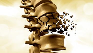 Проф. д-р Явор Енчев, д.м.: При счупен прешлен болката е продължителна и упорита