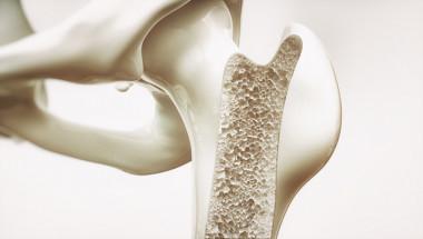Остеопорозата мъчи бавно, но сигурно