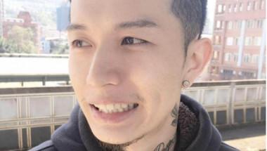 Младеж показа какво му се е случило, след като е отказал цигарите (СНИМКИ)