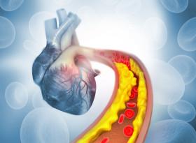 Проф. д-р Лъчезар Гроздински: Стресът е  по-мощен фактор за атеросклероза от холестерола