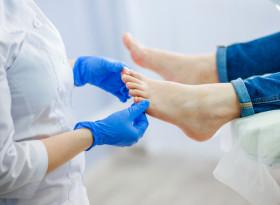 Доц. д-р Гриша Матеев: Гъбичките по ноктите нe са естетичен, а здравен проблем