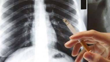 Непушачите не са застраховани! Кои са ранните симптоми на рак на белия дроб