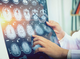 Учени откриха ранни признаци на неизлечима болест