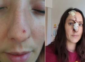 Малка пъпка се появи лицето на жена, а се оказа рак (СНИМКИ)