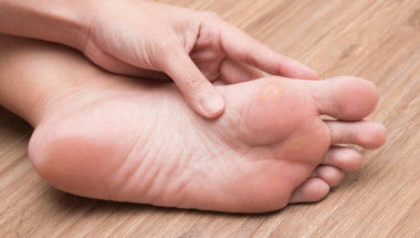 За какви болести издават мазолите по краката