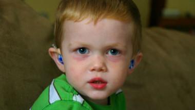Кръговете под очите на това момченце се оказаха симптом на страшно заболяване