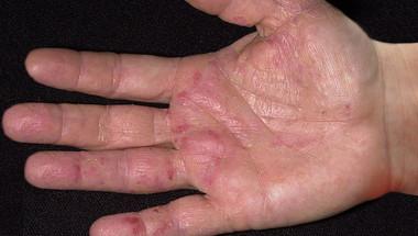 Първите признаци на рак се виждат ясно по ръцете