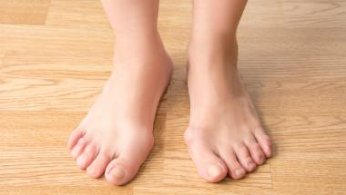 Д-р Димитър Стаматов: Щръкналите кокалчета на краката изчезват след 15-минутна интервенция