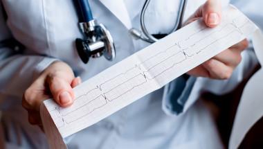 Доц. д-р Добрин Василев: Ритъмни нарушения са предвестници на внезапната сърдечна смърт