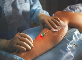 Д-р Ангел Радев: Безкръвните методи са революция в лечението на разширени вени