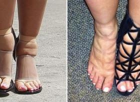 Подуването на краката може да бъде симптом за пет опасности