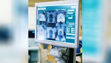 Нови технологии лекуват рак и запазват качеството на живот
