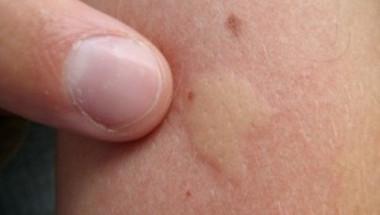 7 нетрадиционни метода за справяне с ухапването от комари