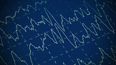 Доц. д-р Петя Димова: Един на 100 страда от епилепсия