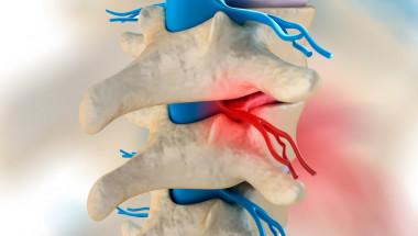 Д-р Веселин Гаврилов: Овладяваме успешно болката при дискова херния с пренастройване на нерва