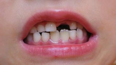 Коя е напитката, която несъмнено разрушава зъбите