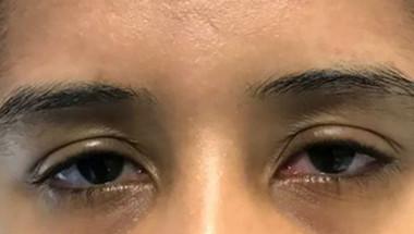 Паренето на очите е симптом на ужасно заболяване
