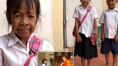 Странна болест превърна 10-годишно момиче в стара жена