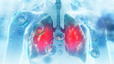 Д-р Николай Янев, д.м.: Нелекуваната ХОББ неминуемо води до дихателна недостатъчност