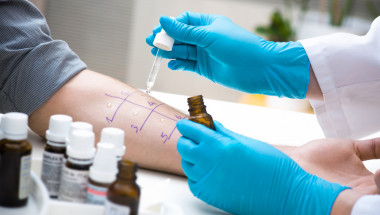 Д-р Елена Петкова: Алергиите през лятото най-често са предизвикани от излагане на слънце